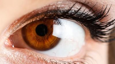 Donkere cirkels onder je ogen